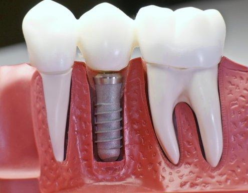 Минусы и плюсы имплантации зубов