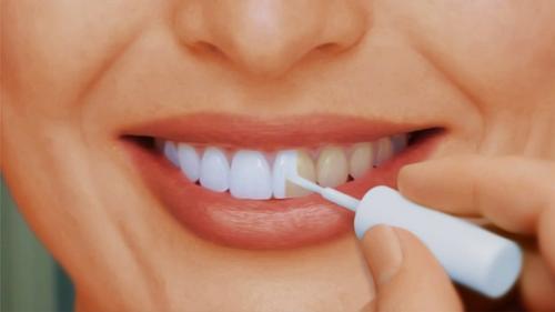 133otbelivanie-zubov
